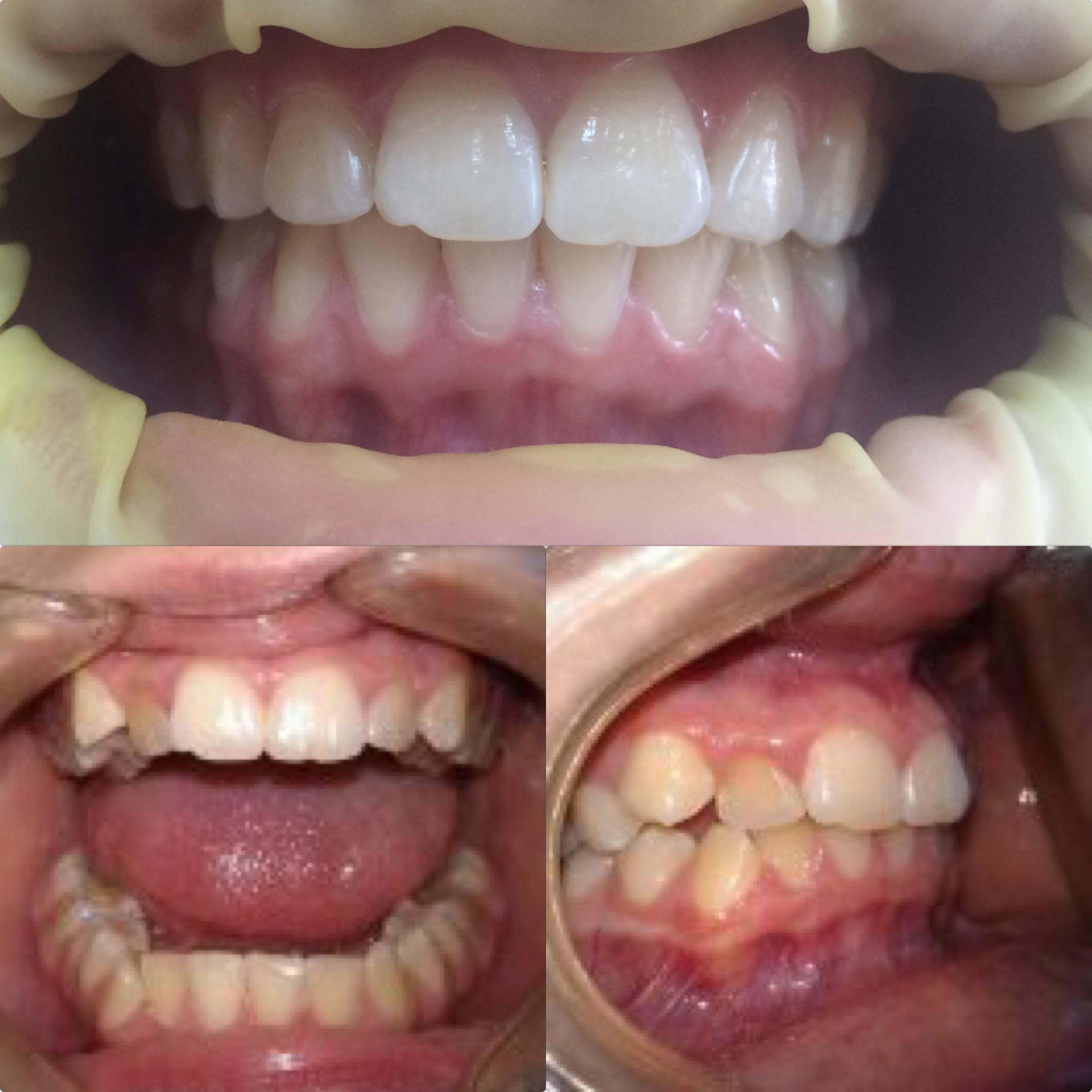 27586586a742 Ортодонтия в Краснодаре - исправление прикуса, выравнивание зубов ...